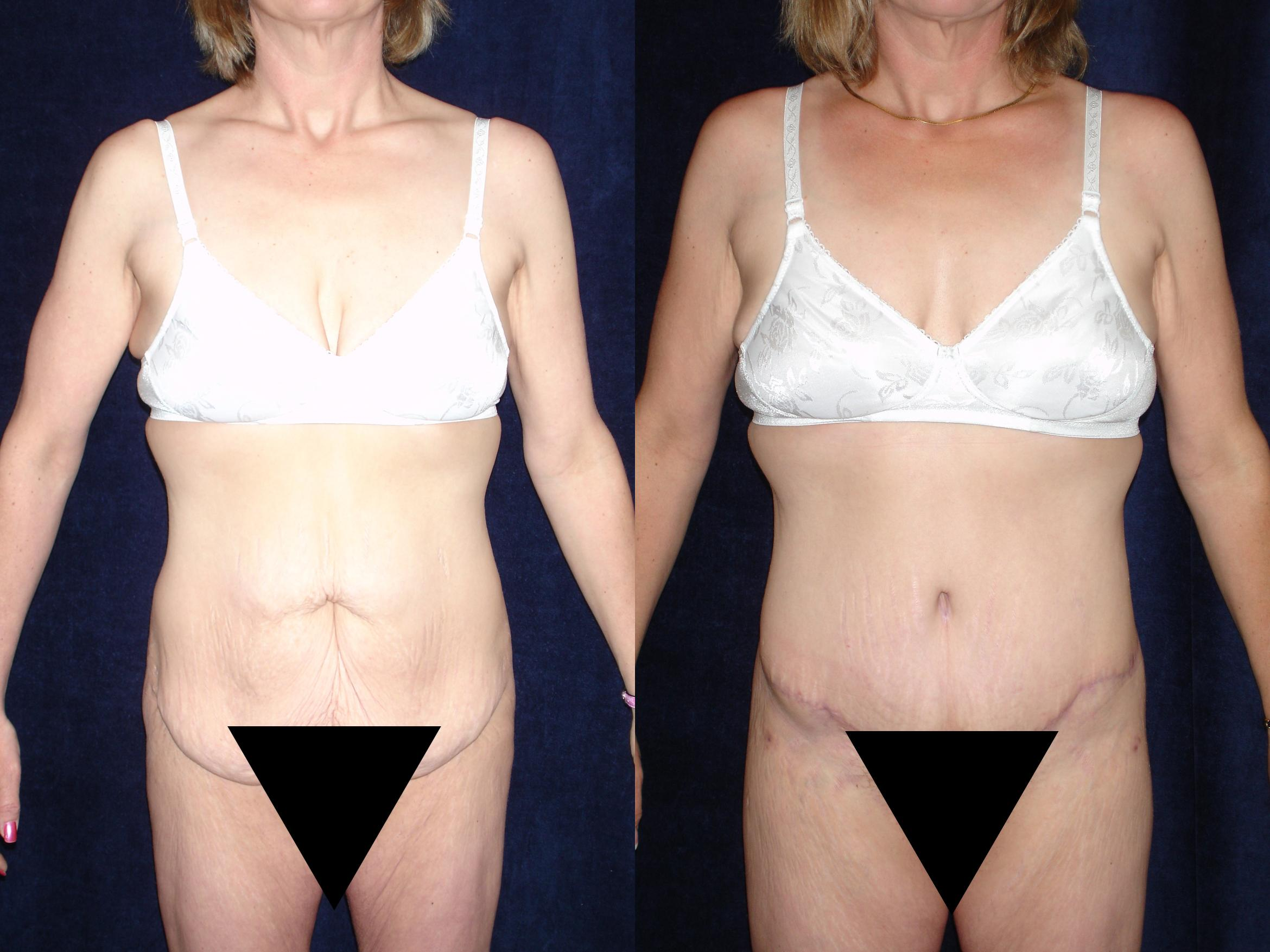 Body Contouring Before & After Photo | San Francisco, CA | Kaiser Permanente Cosmetic Services