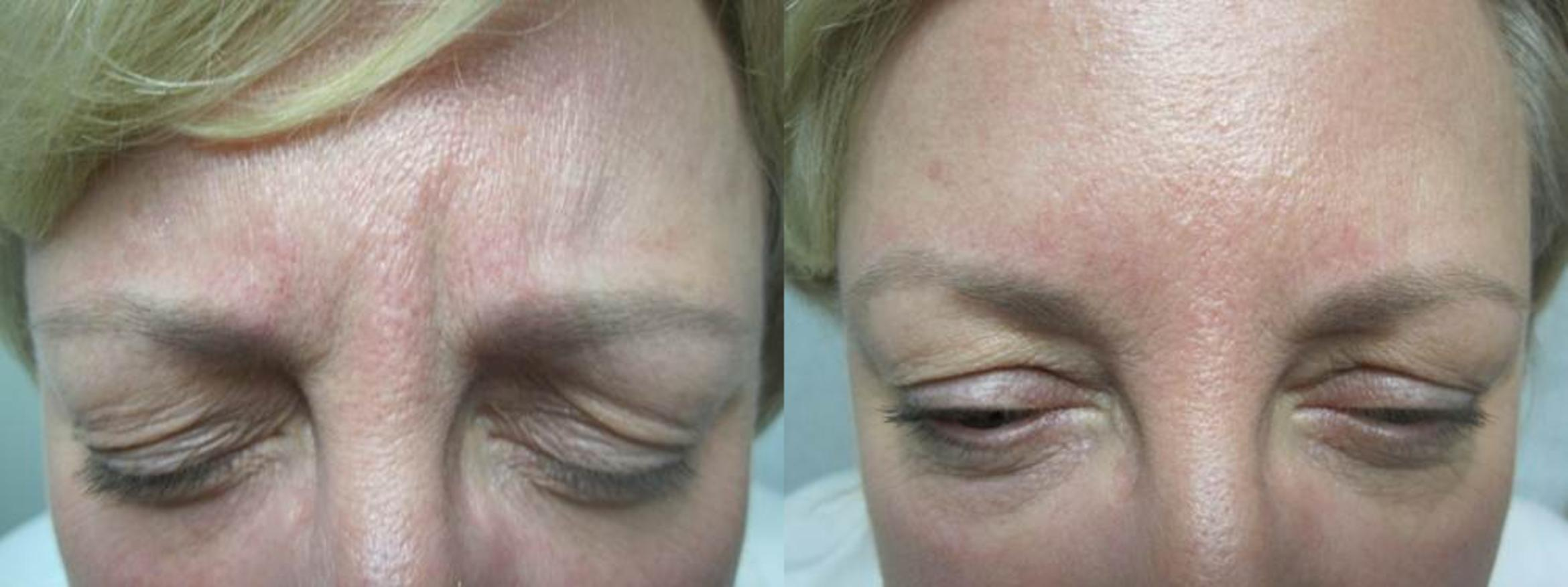 BOTOX® Cosmetic and Dysport® Before & After Photo | San Francisco, CA | Kaiser Permanente Cosmetic Services