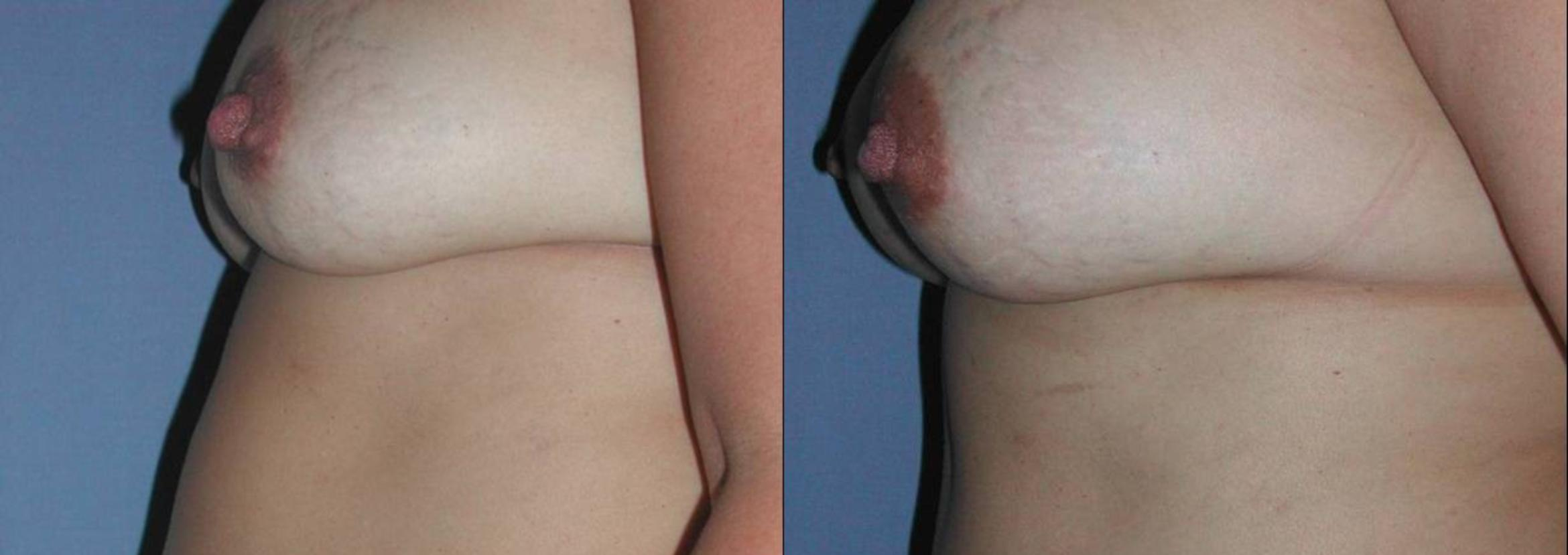 Breast Augmentation Before & After Photo | San Francisco, CA | Kaiser Permanente Cosmetic Services