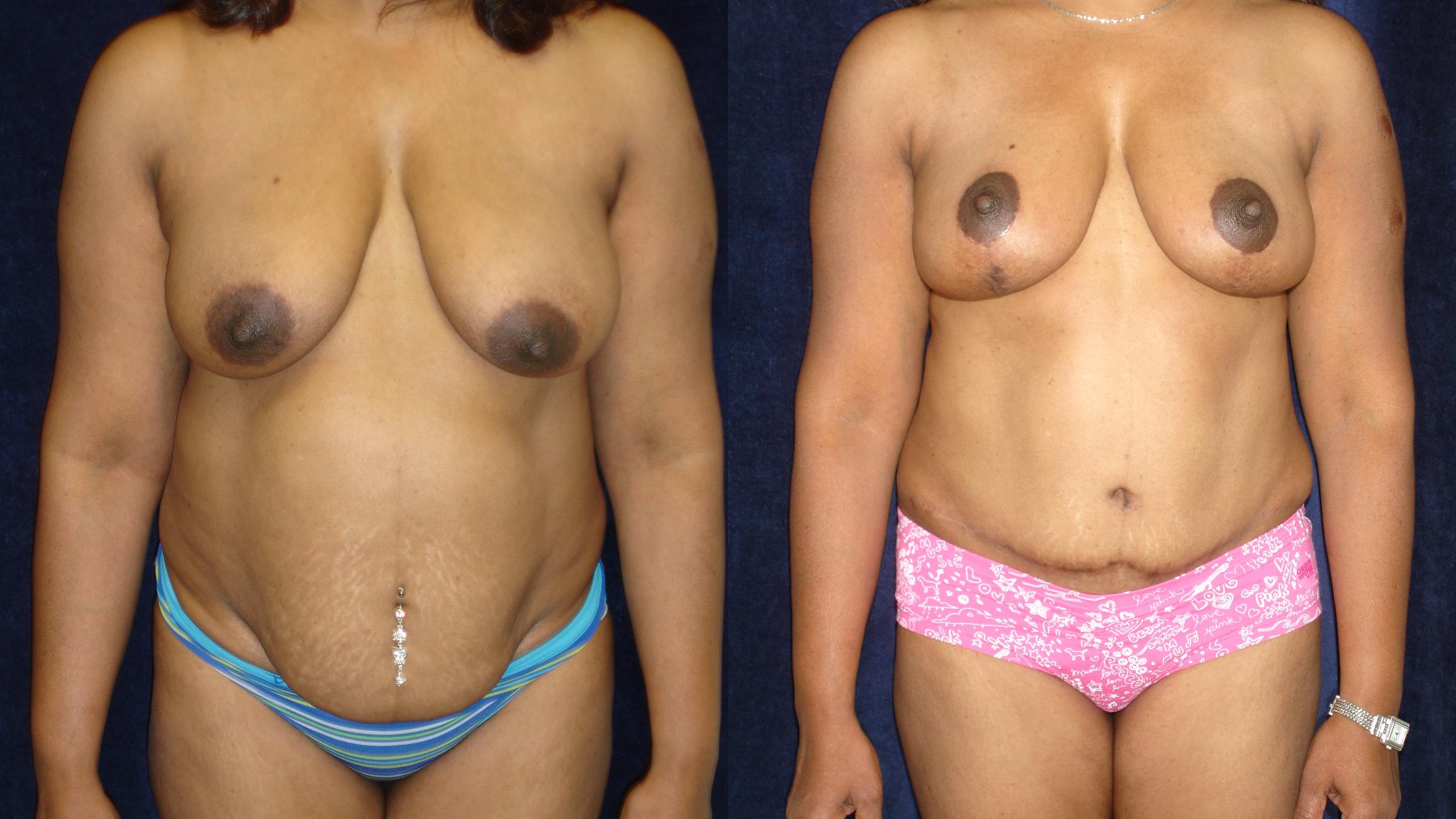 Breast Lift Before & After Photo | San Francisco, CA | Kaiser Permanente Cosmetic Services