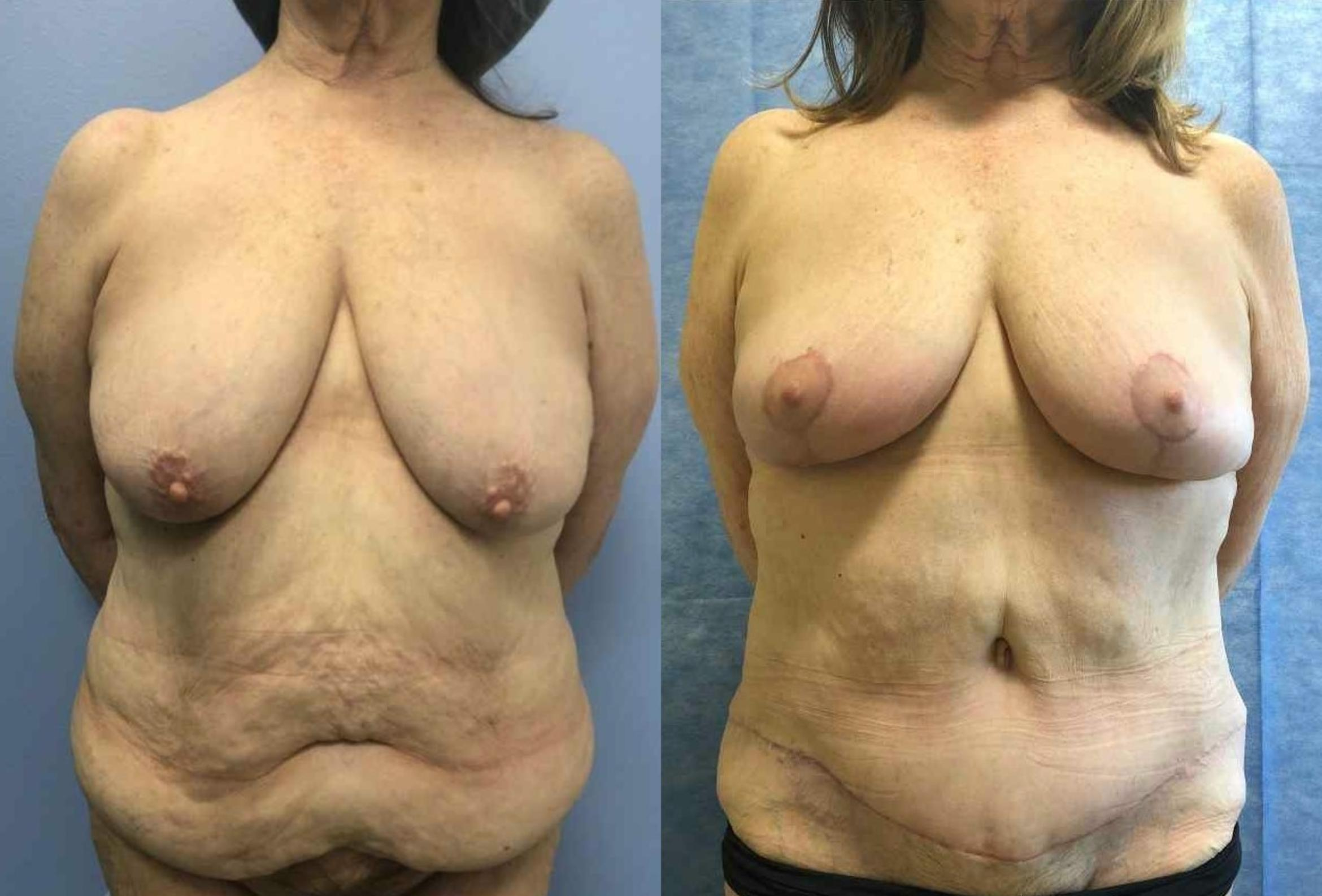 Breast Reduction Before & After Photo | San Francisco, CA | Kaiser Permanente Cosmetic Services