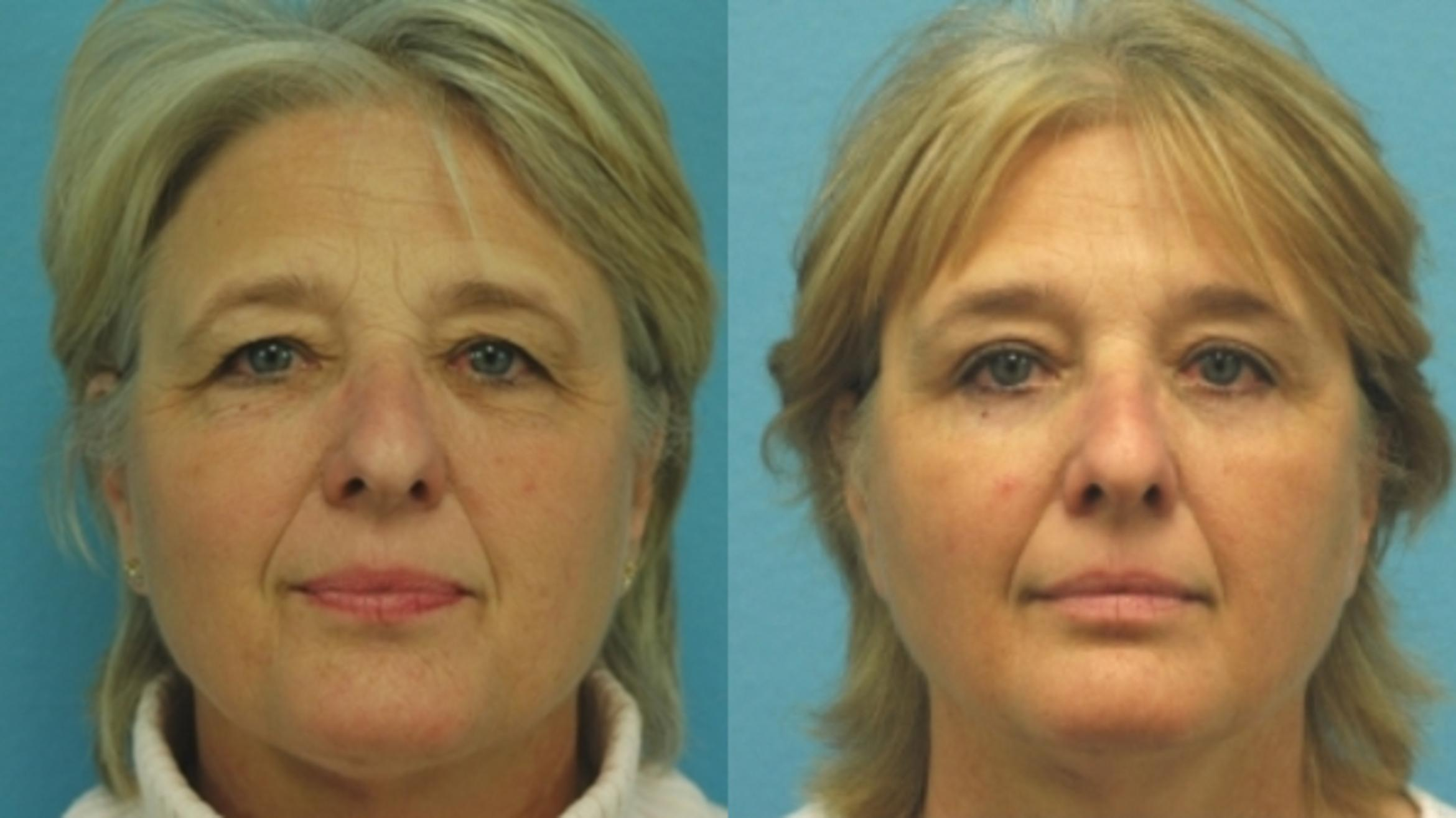 Brow Lift Before & After Photo | San Francisco, CA | Kaiser Permanente Cosmetic Services