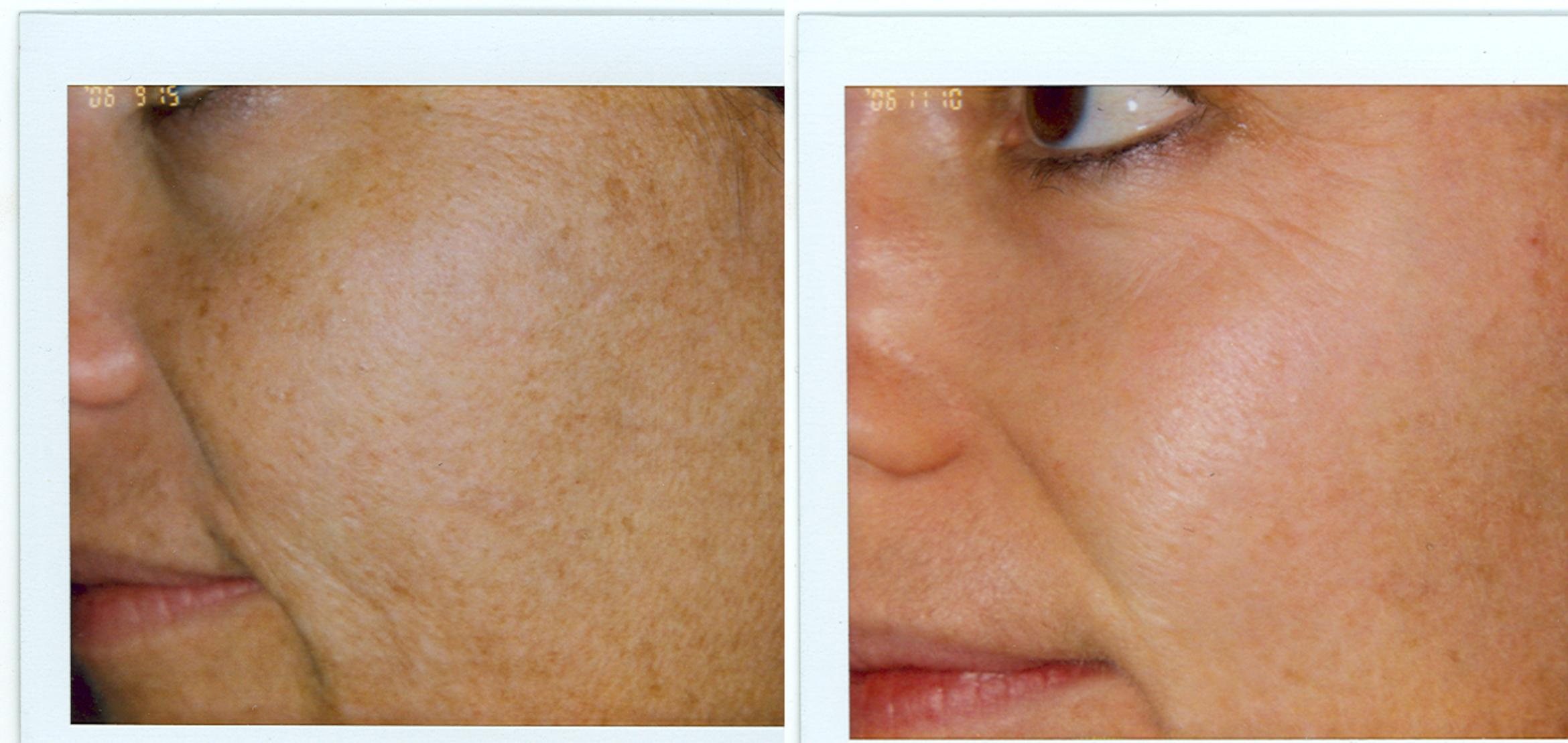 Chemical Peels Before & After Photo | San Francisco, CA | Kaiser Permanente Cosmetic Services