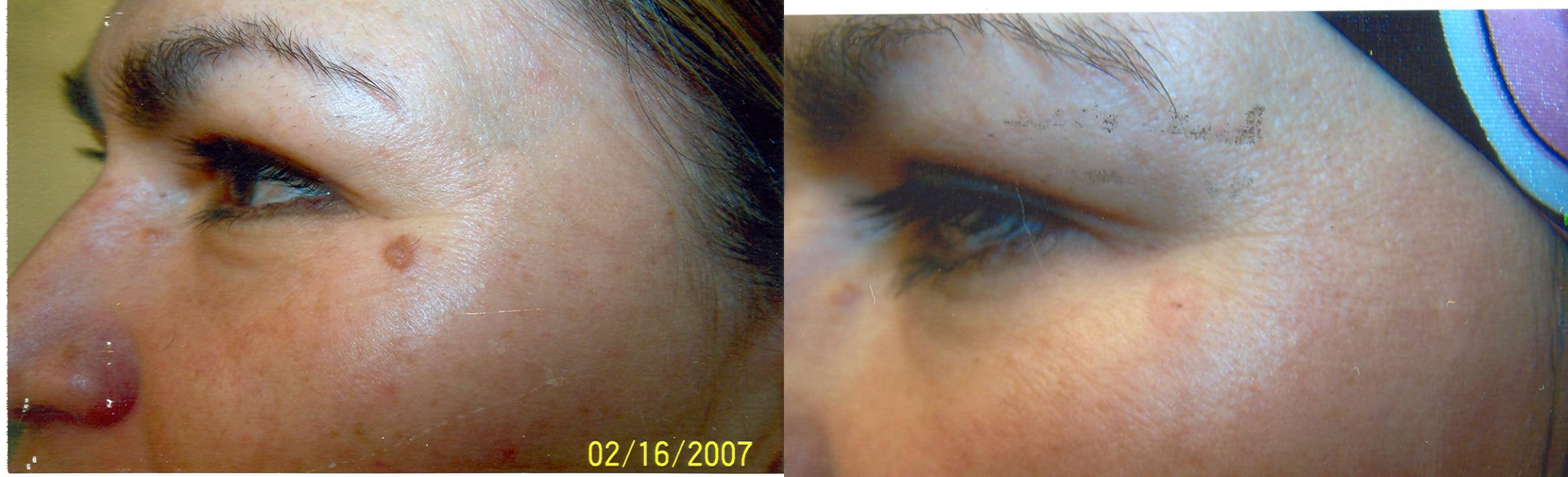 Cosmetic Removal of Moles & Skin Tags Before & After Photo | San Francisco, CA | Kaiser Permanente Cosmetic Services