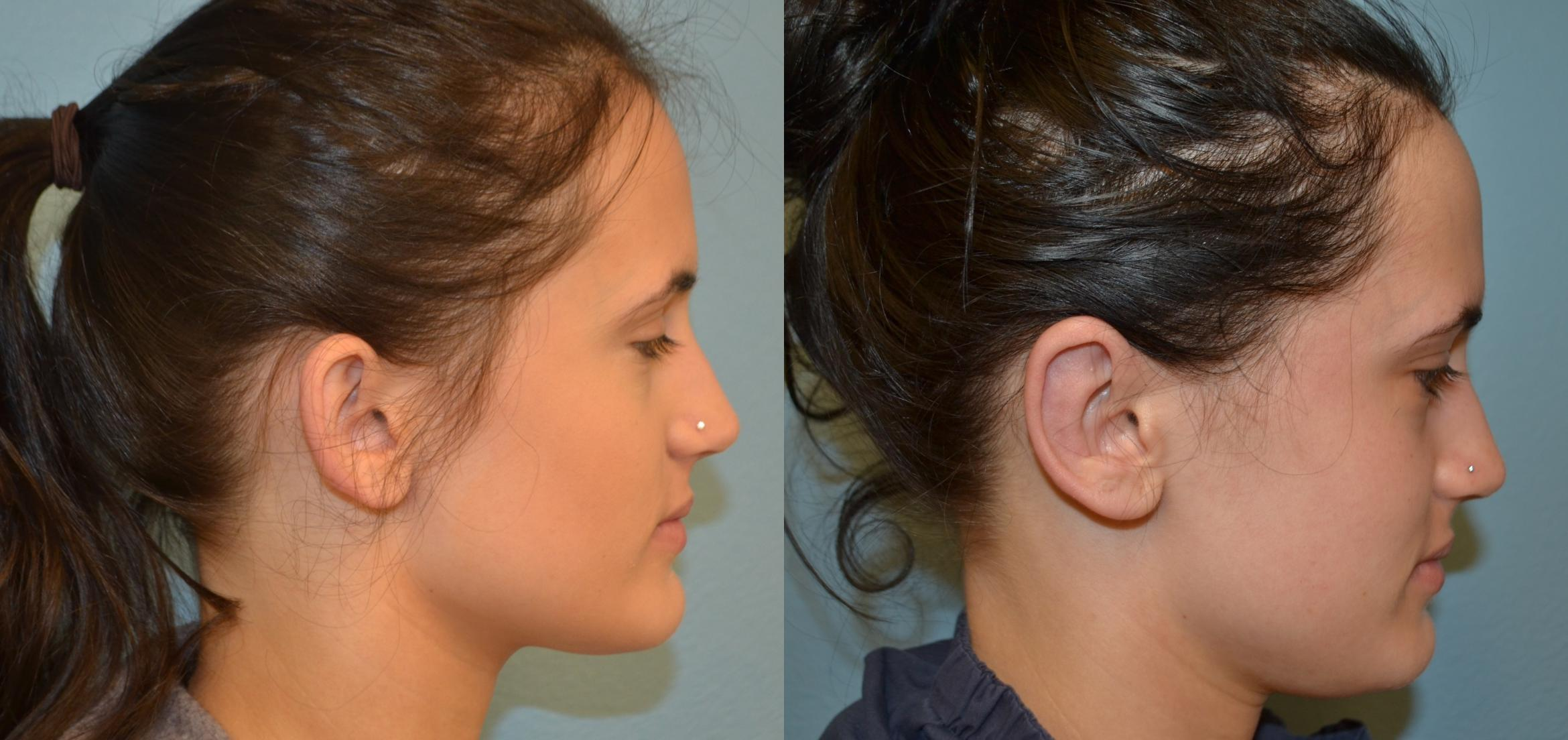 Ear Surgery Before & After Photo | San Francisco, CA | Kaiser Permanente Cosmetic Services