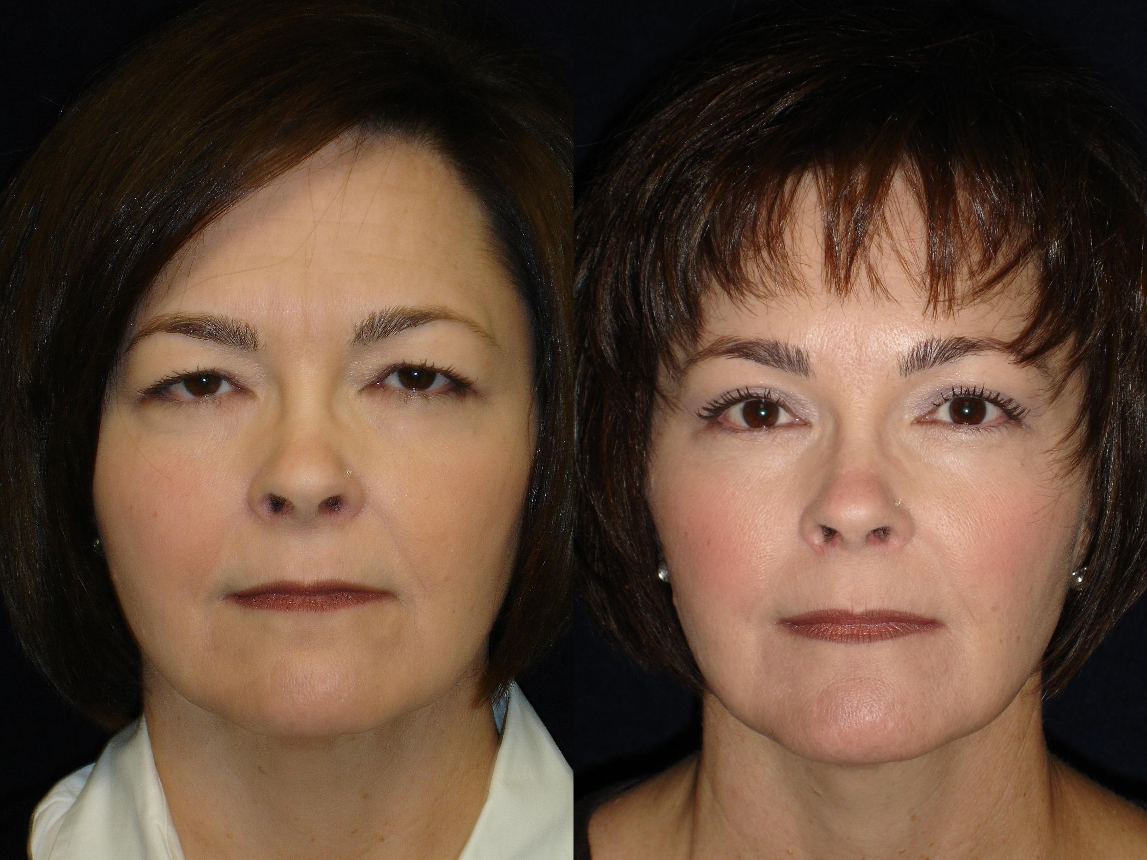 Eyelid Surgery Before & After Photo | San Francisco, CA | Kaiser Permanente Cosmetic Services