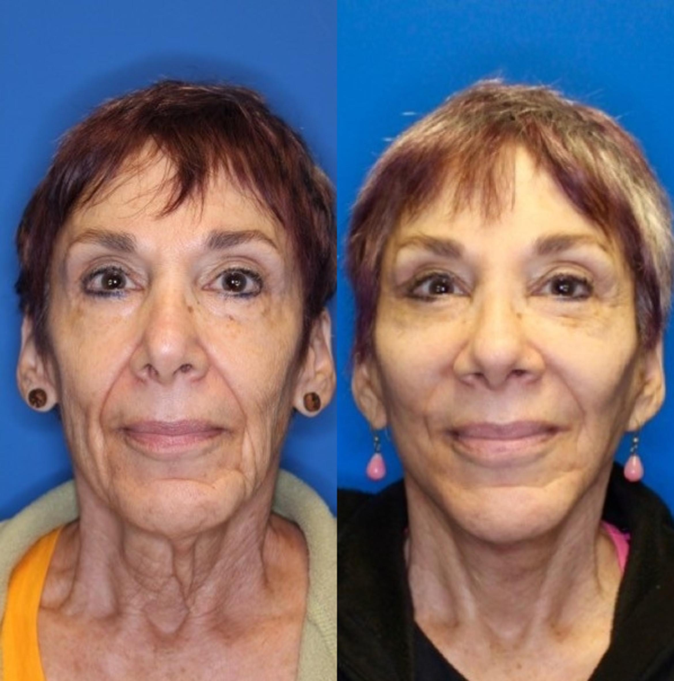 Facelift Before & After Photo | San Francisco, CA | Kaiser Permanente Cosmetic Services