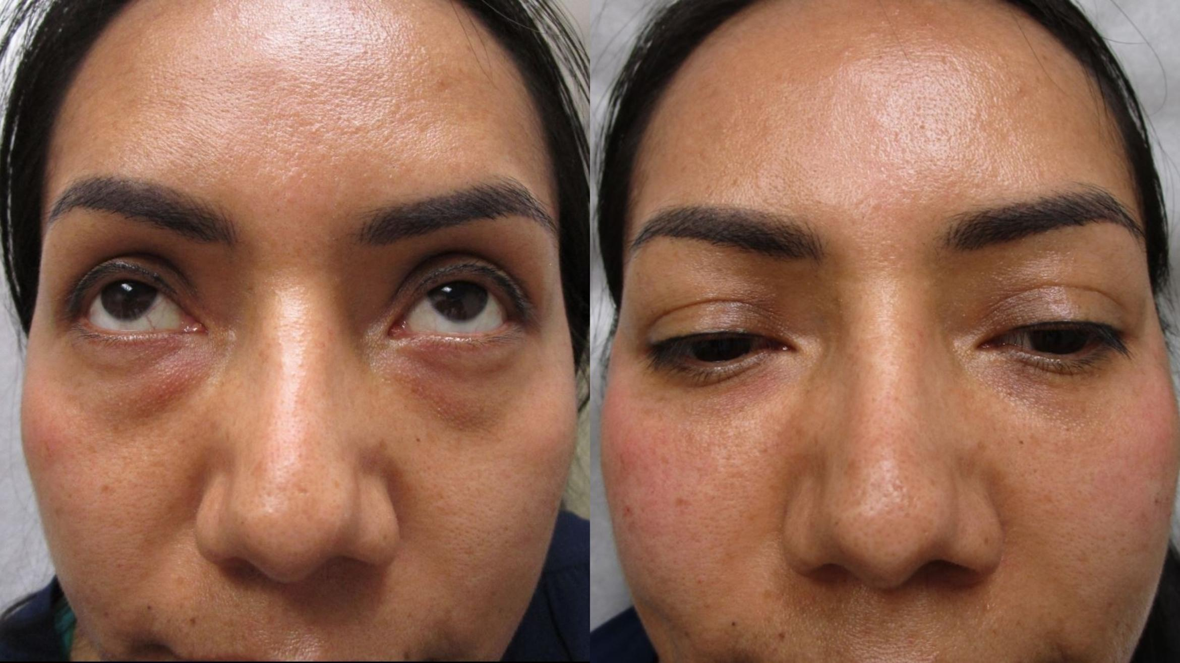 Fillers (JUVÉDERM®, JUVÉDERM VOLUMA®, Restylane®) Before & After Photo | San Francisco, CA | Kaiser Permanente Cosmetic Services