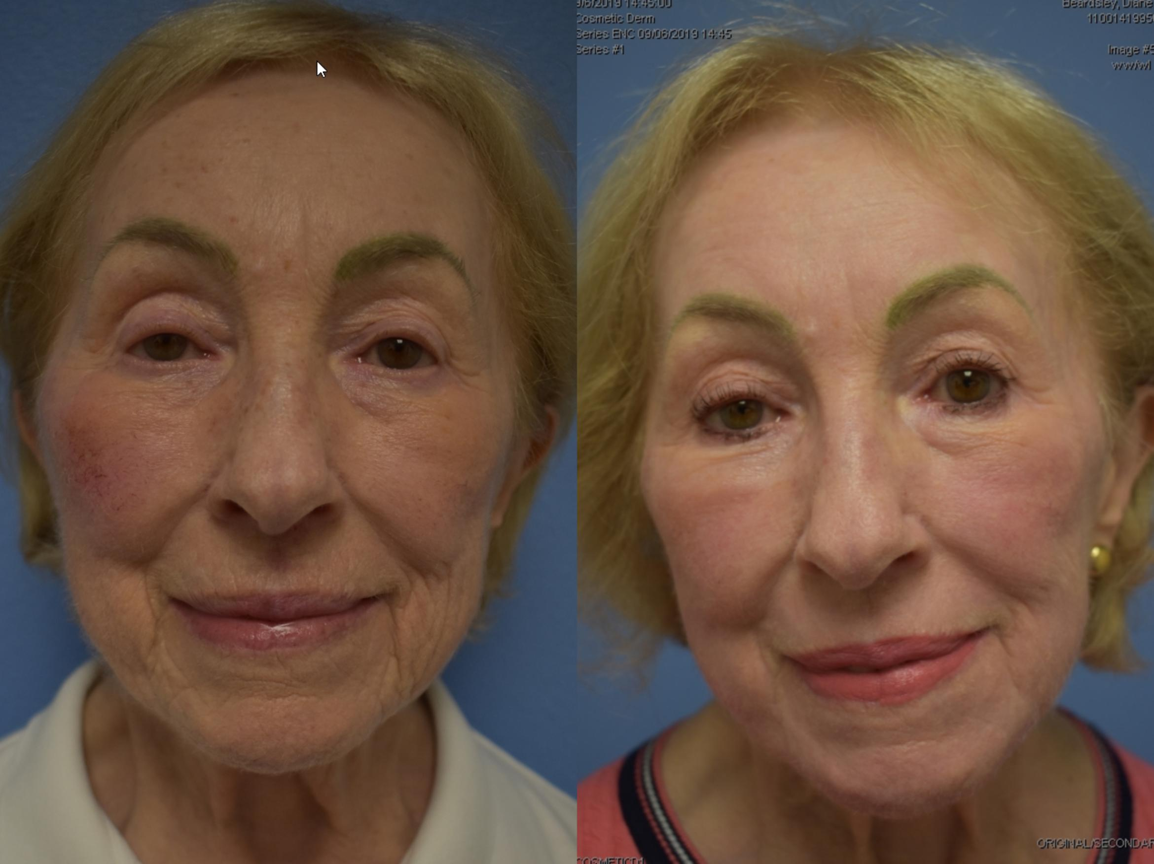 Fraxel Re:Store Laser Treatment Before & After Photo | San Francisco, CA | Kaiser Permanente Cosmetic Services