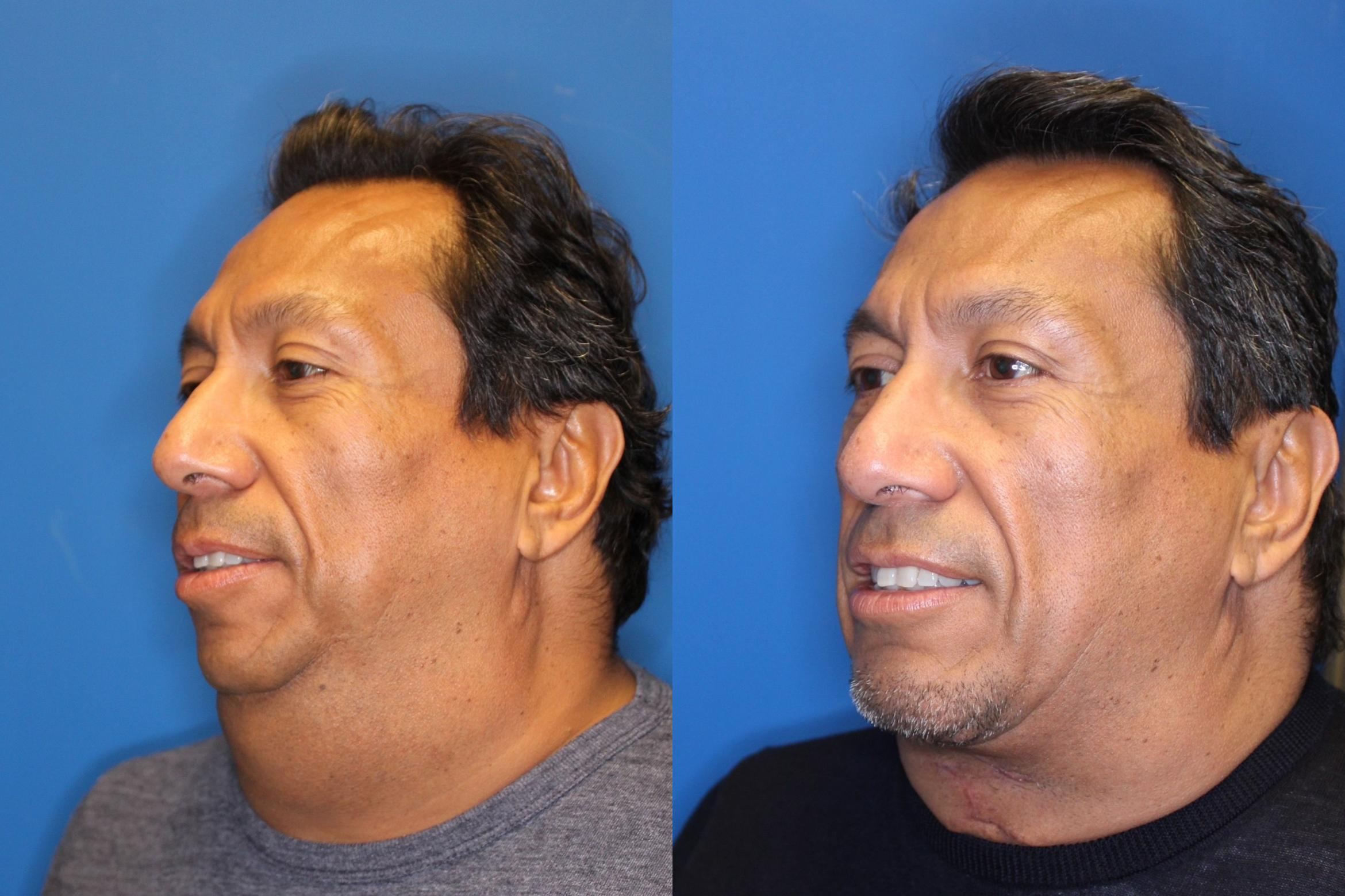 Neck Lift Before & After Photo | San Francisco, CA | Kaiser Permanente Cosmetic Services