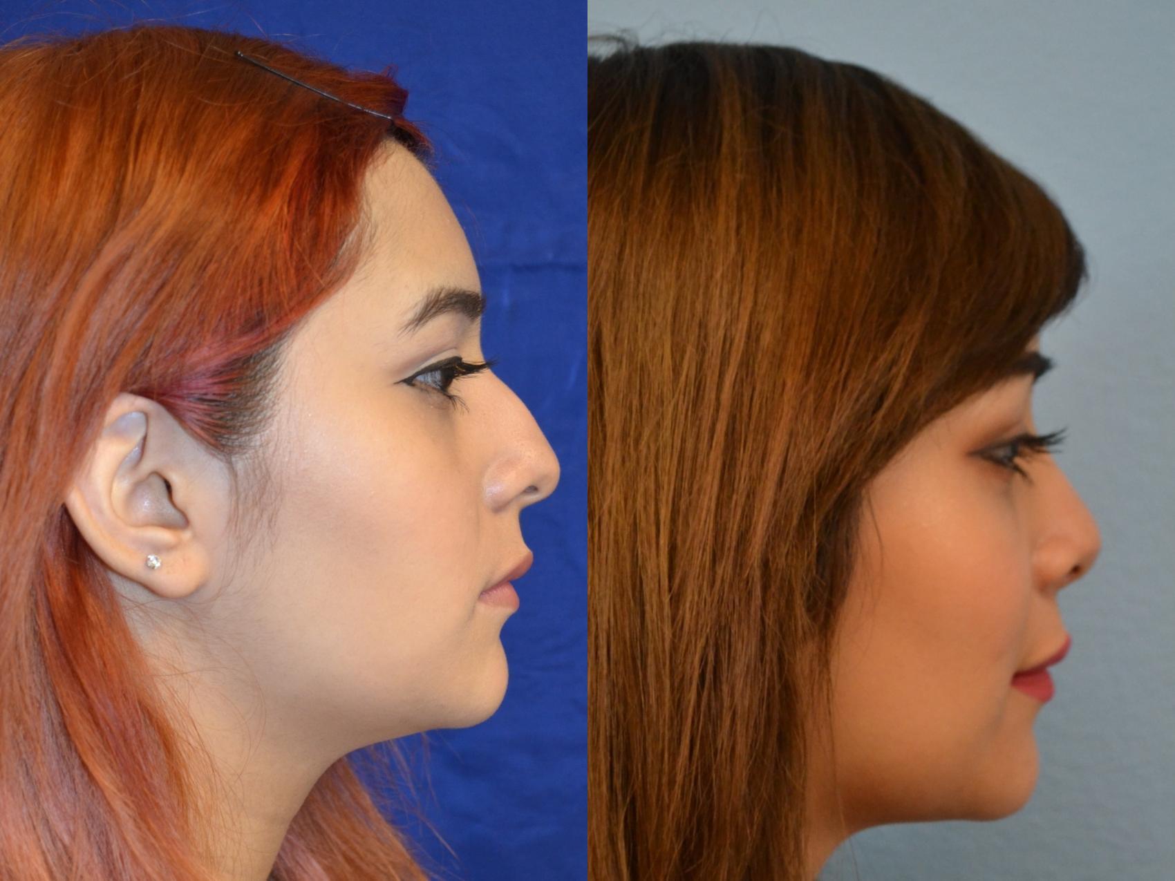 Nose Job (Rhinoplasty)