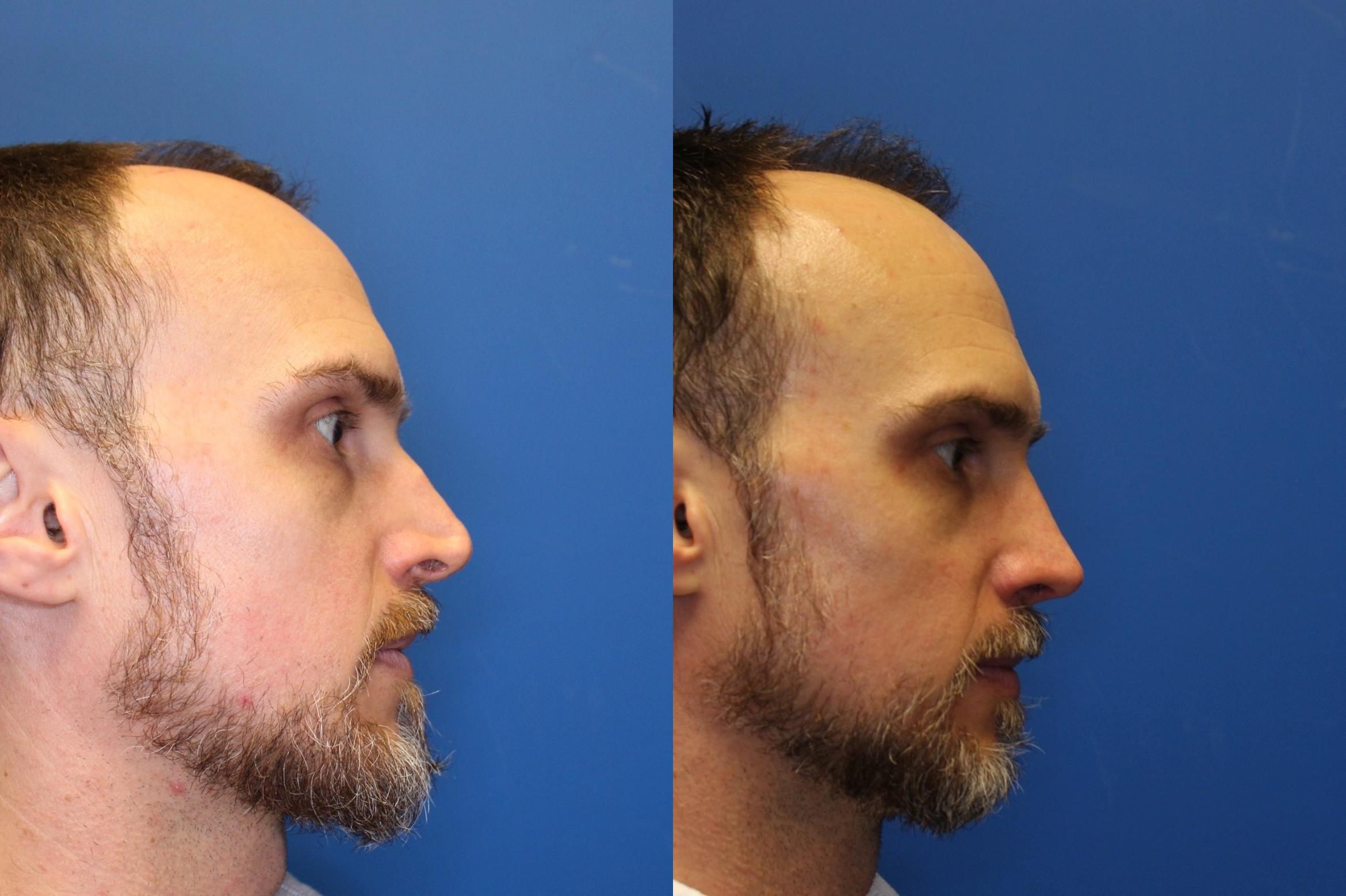 Nose Surgery Before & After Photo | San Francisco, CA | Kaiser Permanente Cosmetic Services