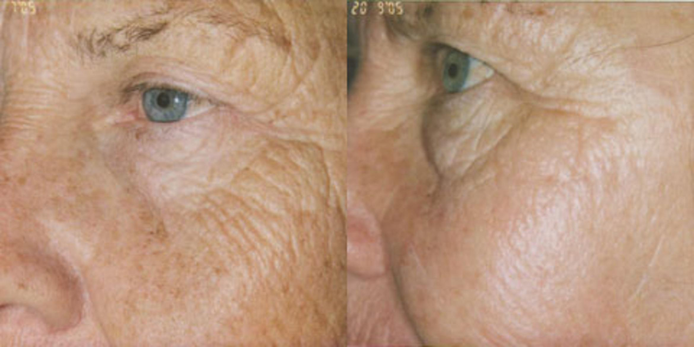Obagi® Consultation Before & After Photo | San Francisco, CA | Kaiser Permanente Cosmetic Services
