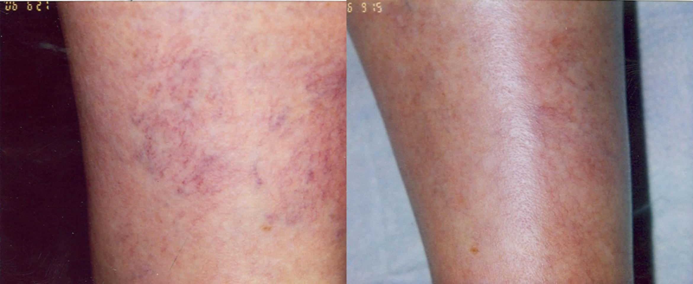 Sclerotherapy Before & After Photo | San Francisco, CA | Kaiser Permanente Cosmetic Services