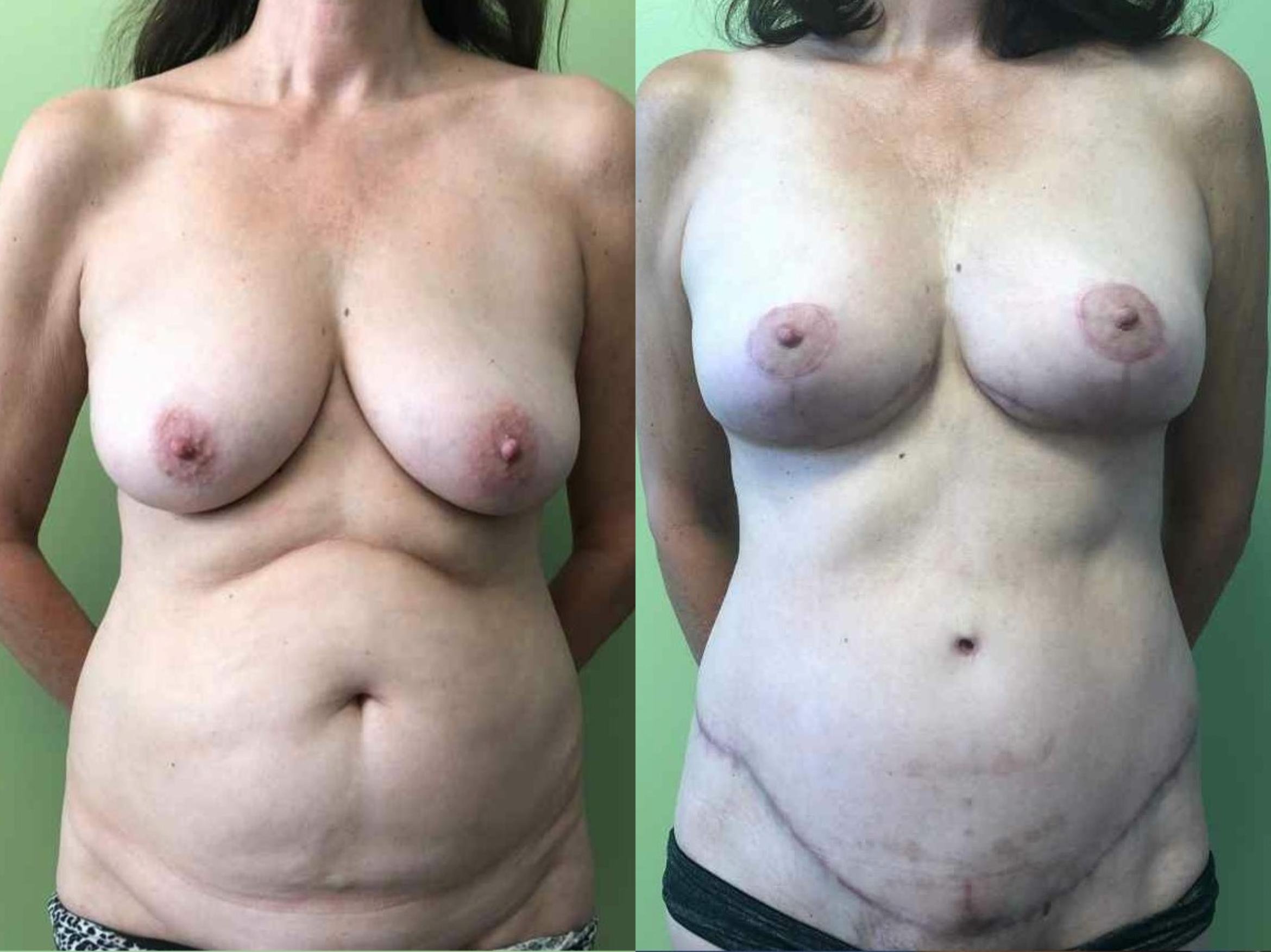 Tummy Tuck Before & After Photo | San Francisco, CA | Kaiser Permanente Cosmetic Services