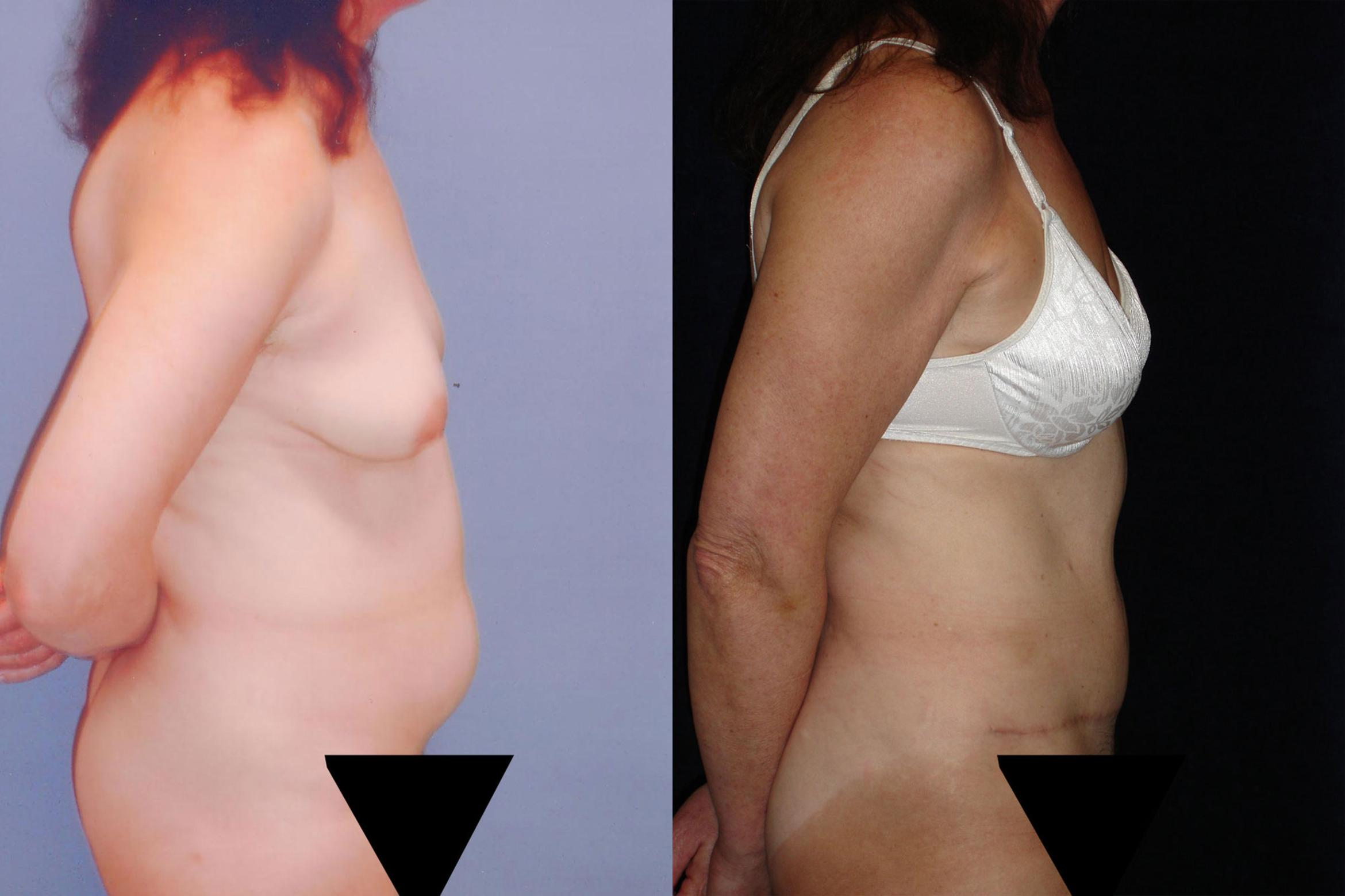 Tummy Tuck Abdominoplasty For Northern California Kaiser