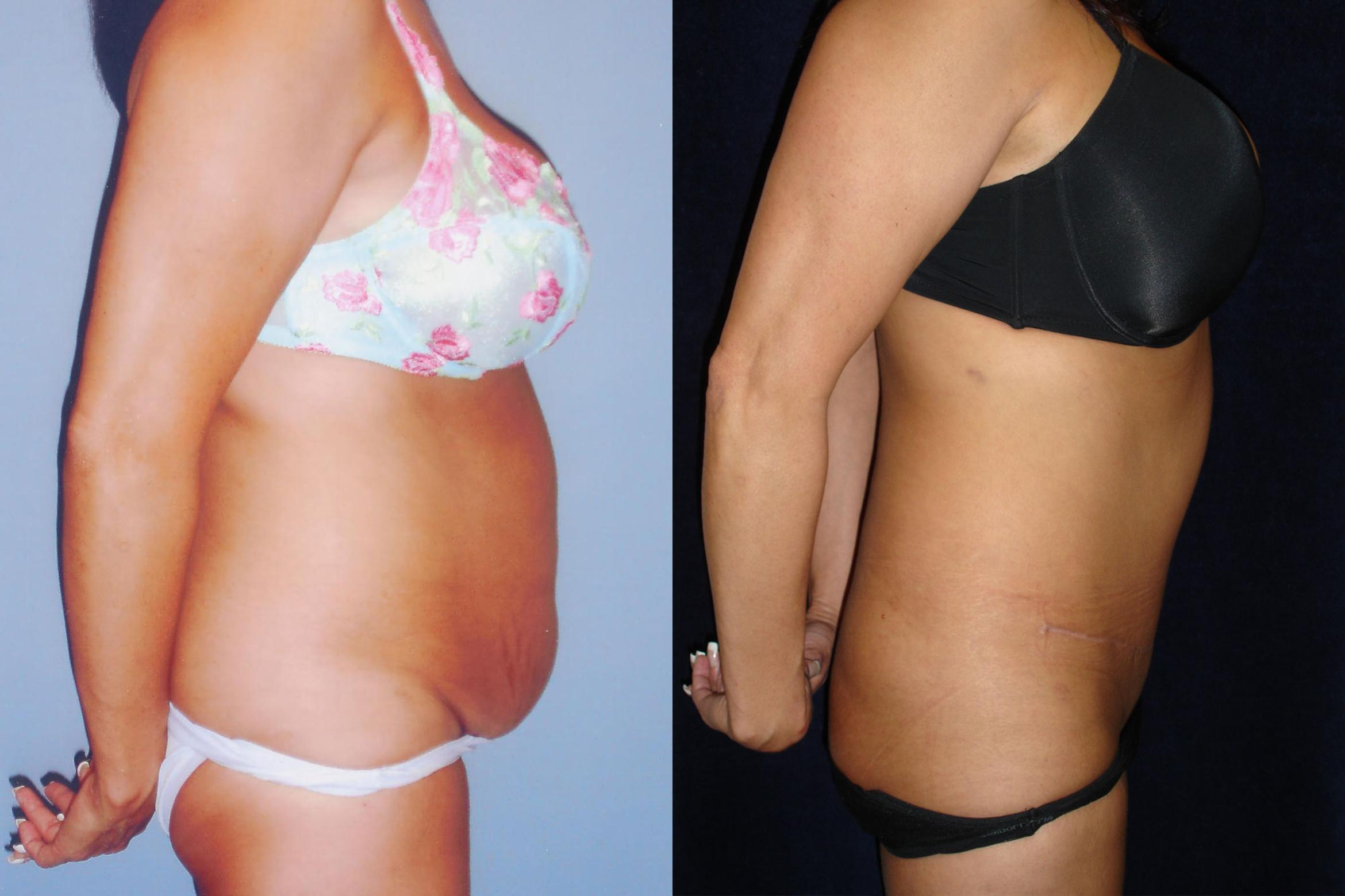 Tummy Tuck Abdominoplasty For Northern California Kaiser Permanente Cosmetic Services